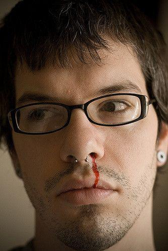 5 Strangest Mental Disorders