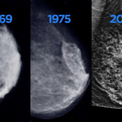 4 Essential Benefits of Getting a Mammogram