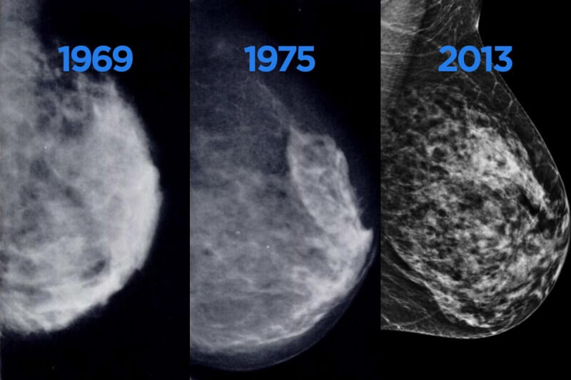 Images from Mammogram from 1969, 1975, 2013