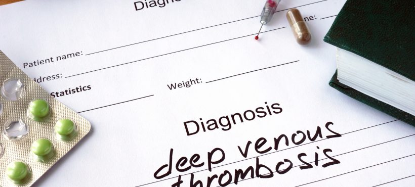 Everything You Wanted to Know about Deep Vein Thrombosis (DVT)
