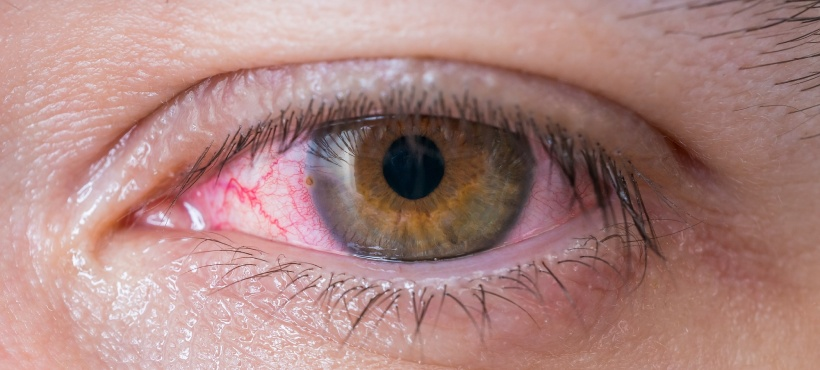 How to Spot the Most Common Eye Infections