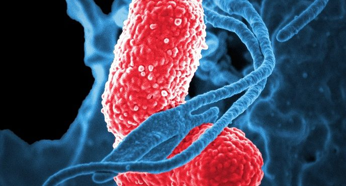 What Are The Common Bacteria That Cause Pneumonia?