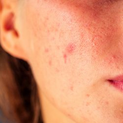 Find Out Why You're Breaking Out! 7 Causes of Cystic Acne in Adults